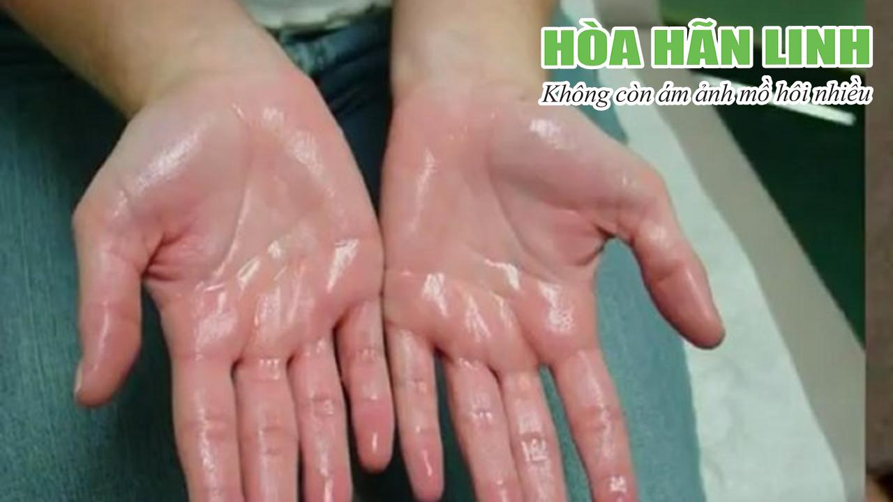 Bệnh tăng tiết mồ hôi dấu hiệu thường gặp là ở lòng bàn tay